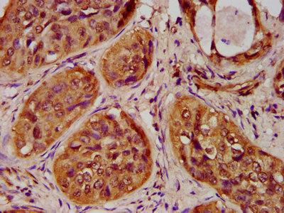 Immunohistochemistry(IHC) 1- HIST1H4A (Ab-20) Antibody