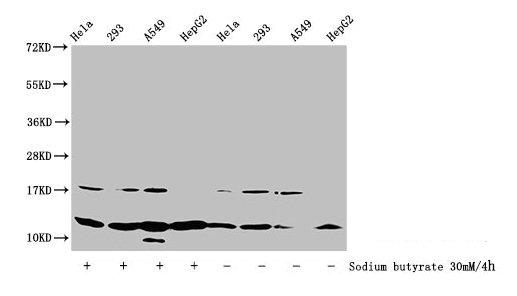 Western Blotting(WB) - Acetyl-HIST1H4A (K31) Antibody