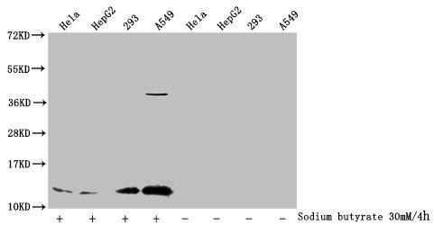 Western Blotting(WB) - Acetyl-HIST1H4A (K91) Antibody