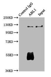 Immunoprecipitation(IP) - ABL1 Antibody