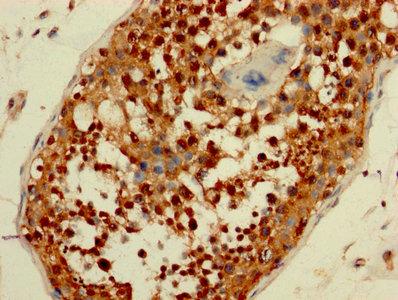 Immunohistochemistry(IHC) 1- AATF Antibody