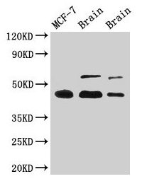 Western Blotting(WB) 4- TP53 Antibody