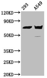Western Blotting(WB) - PLS1 Antibody