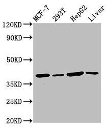 Western Blotting(WB) - IBA57 Antibody