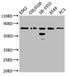 Western Blotting(WB) - BRINP3 Antibody
