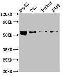 Western Blotting(WB) - ZDHHC14 Antibody