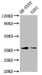 Western Blotting(WB) - BARHL1 Antibody