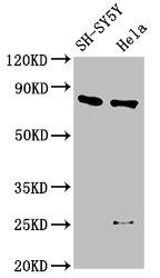 Western Blotting(WB) - CTNNB1 Antibody