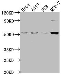 Western Blotting(WB) - FKTN Antibody