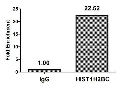 Chromatin Immunoprecipitation(ChIP) - acetyl-Histone H2B (K120) Antibody