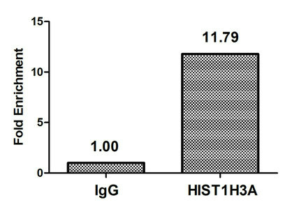Chromatin Immunoprecipitation(ChIP) - Acetyl-HIST1H3A (T22) Antibody