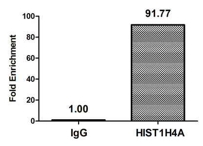 Chromatin Immunoprecipitation(ChIP) - Propionyl-HIST1H4A (K31) Antibody
