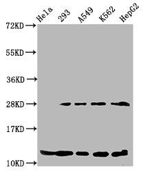 Western Blotting(WB) - HIST1H4A (Ab-55) Antibody