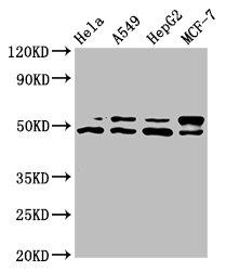 Western Blotting(WB) - AKT1 Antibody