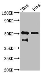 Western Blotting(WB) - tp63 Antibody