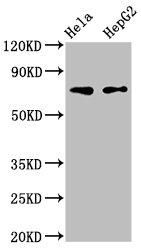 Western Blotting(WB) - FRMD6 Antibody