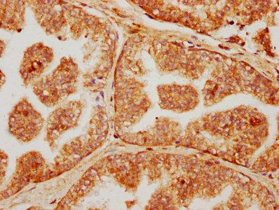 Immunohistochemistry(IHC) 2- FAR1 Antibody