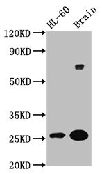 Western Blotting(WB) - FEV Antibody