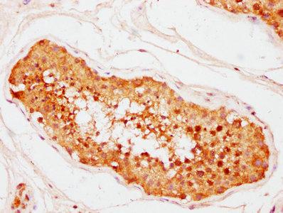 Immunohistochemistry(IHC) 1- CNOT10 Antibody