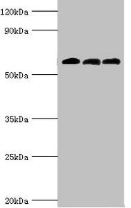 Western Blotting(WB) - ABAT Antibody