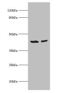 Western Blotting(WB) - ACADS Antibody