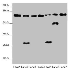 Western Blotting(WB) - ALB Antibody
