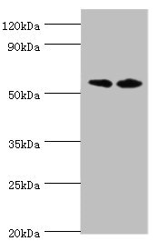 Western Blotting(WB) - ALPP Antibody