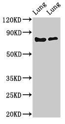 Western Blotting(WB) - FOXP1 Antibody
