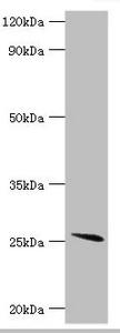 Western Blotting(WB) - GSTA2 Antibody