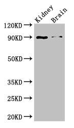 Western Blotting(WB) - IL4 Antibody