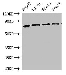 Western Blotting(WB) - KLKB1 Antibody