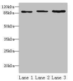Western Blotting(WB) - STAT5B Antibody