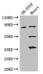 Western Blotting(WB) - MAPT Antibody