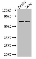 Western Blotting(WB) - FOXO1 Antibody