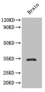 Western Blotting(WB) 3- SOX2 Antibody