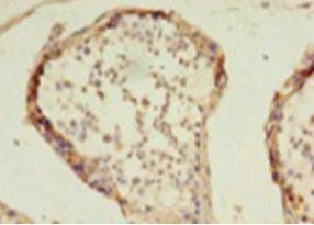 Immunohistochemistry(IHC) 2- HDAC1 Antibody