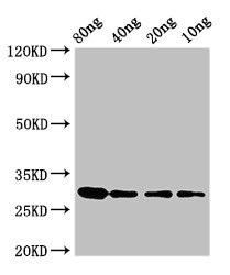 Western Blotting(WB) - RNU2 Antibody