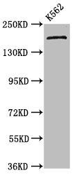 Western Blotting(WB) - PSME4 Antibody