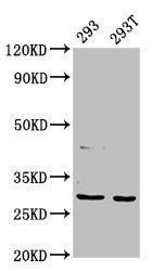 Western Blotting(WB) - AANAT Antibody