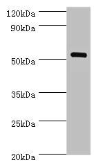 Western Blotting(WB) - MEF2C Antibody