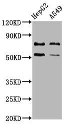 Western Blotting(WB) - GCNA Antibody