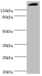 Western Blotting(WB) - SMARCC2 Antibody