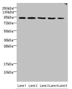 Western Blotting(WB) - THOC1 Antibody