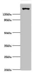 Western Blotting(WB) - EIF2AK4 Antibody