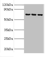 Western Blotting(WB) - ABCF2 Antibody