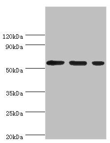 Western Blotting(WB) - AAAS Antibody