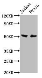 Western Blotting(WB) - ONECUT1 Antibody