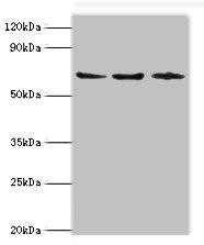 Western Blotting(WB) - ACAD9 Antibody