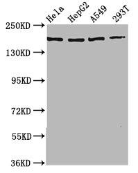 Western Blotting(WB) - HECW2 Antibody