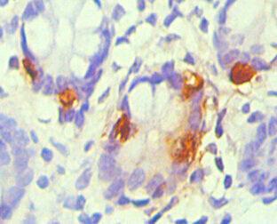 Immunocytochemistry(ICC) 1- CHGA Monoclonal Antibody